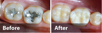 composite-tooth-colored-fillings-NYC