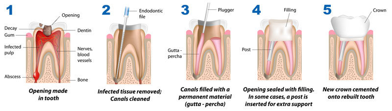 root-canal-therapy-steps-procedure