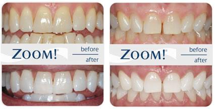 Teeth Whitening In Nyc Zoom Whitening