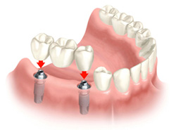 dental-implant-procedure-NYC