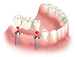dental-implant-procedure-NYC