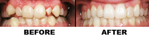 invisalign-before-after-2
