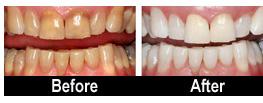 99-teeth-whitening