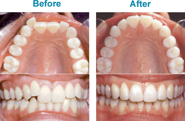 how-does-invisalign-work-before-after